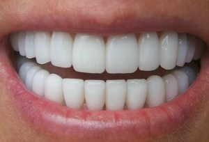 10 Be ready by having a bright and white-teeth smile