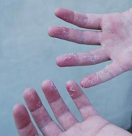 What causes skin peeling on fingertips