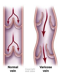 10. Maintain your weight to avoid varicose veins